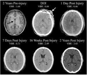 Two-years-prior-to-sustaining-a-severe-traumatic-brain-injury-TBI-this-patient
