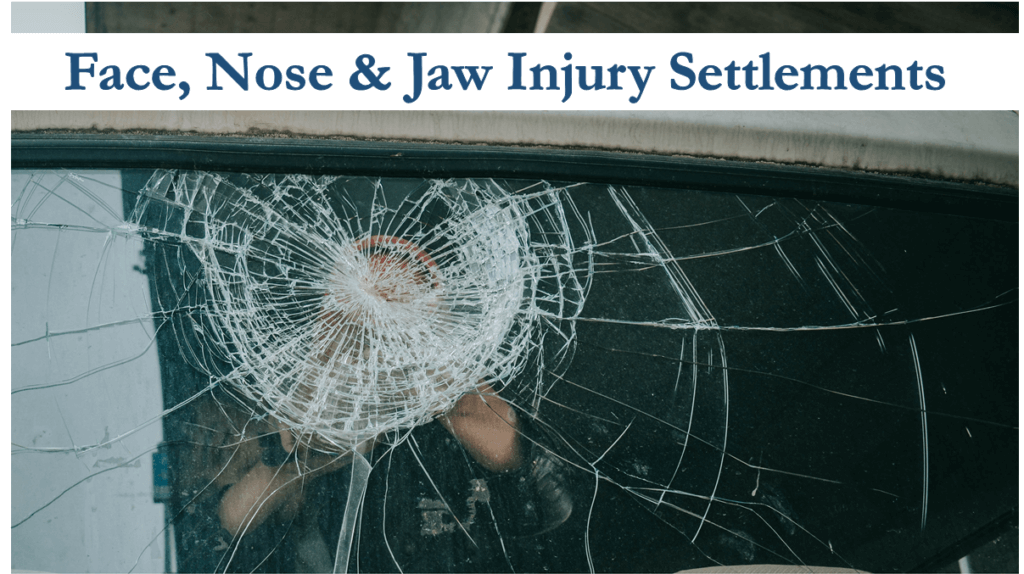 Nose, Jaw & Face Injury Settlements