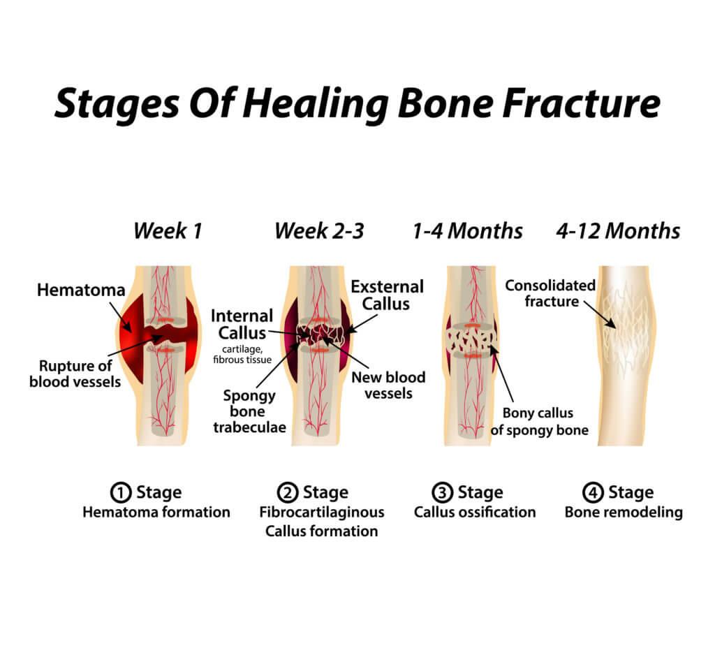 Broken Leg Healing Stages