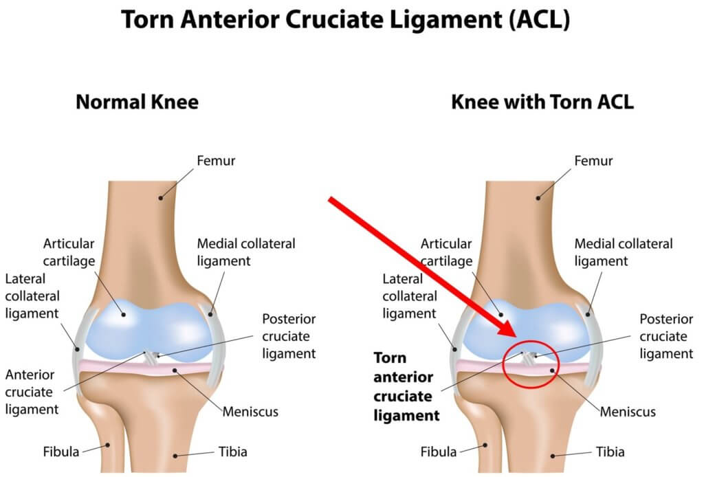Torn ACL Lawsuit Analysis