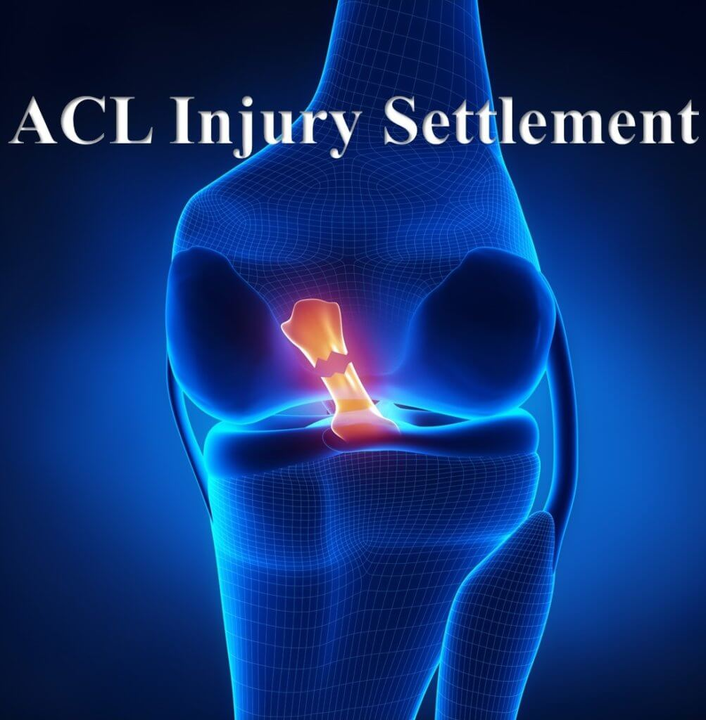 ACL Injury Guide