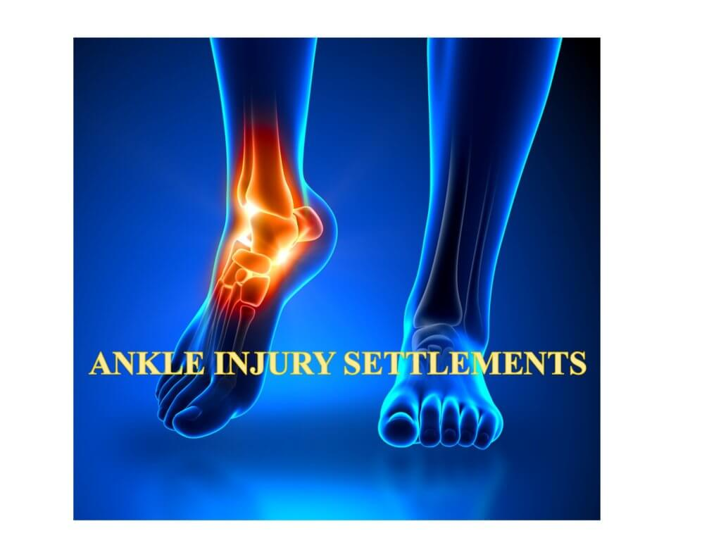 Ankle Injury Settlements