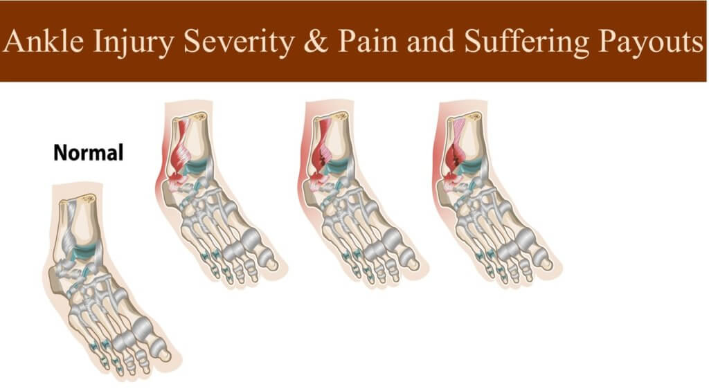 Ankle Injury Pain and Settlement