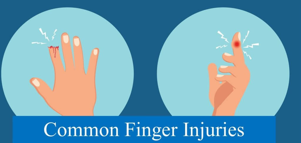 Common Finger Injuries