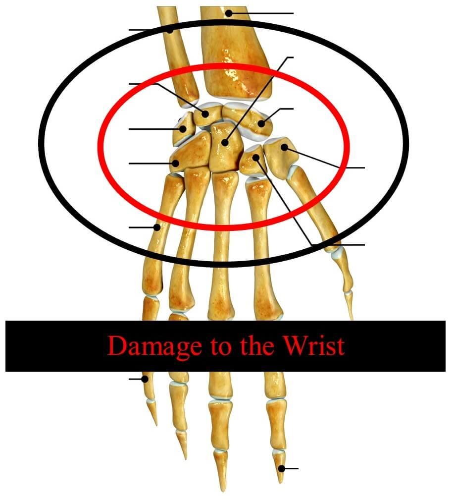 Broken Wrist Settlement Guide