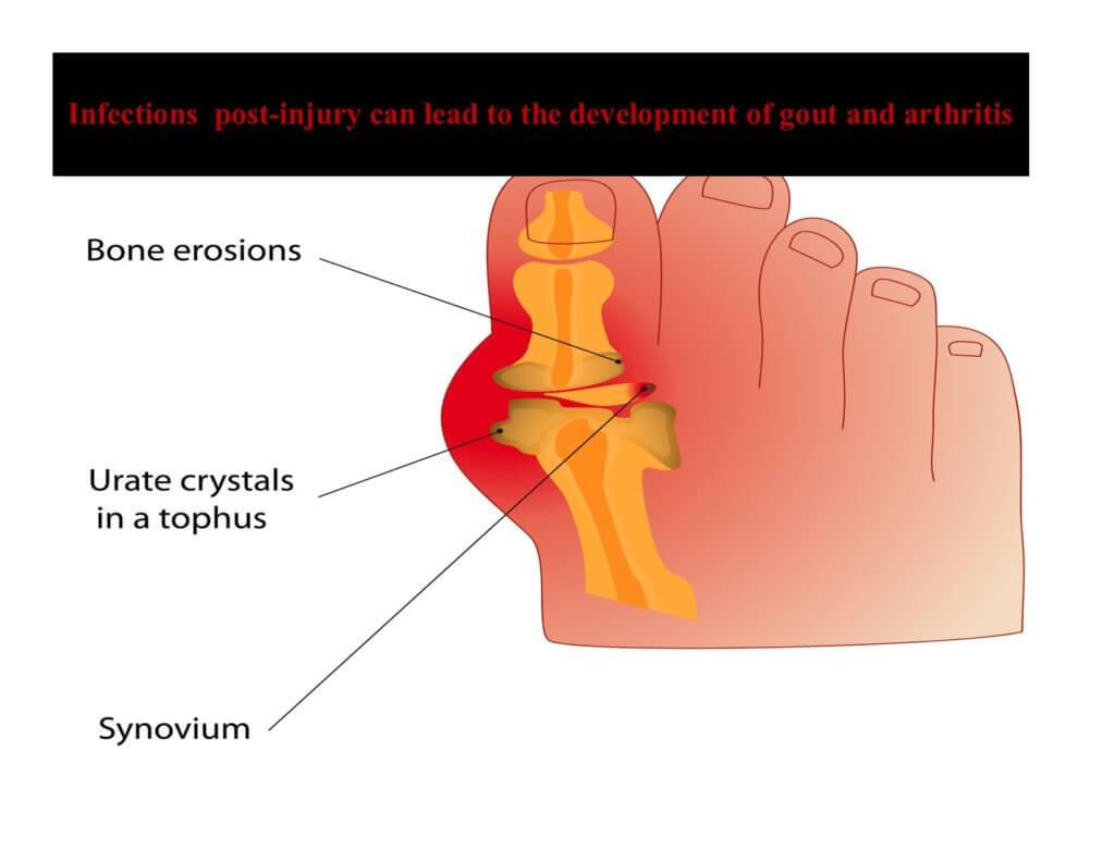 Arthritis Toe