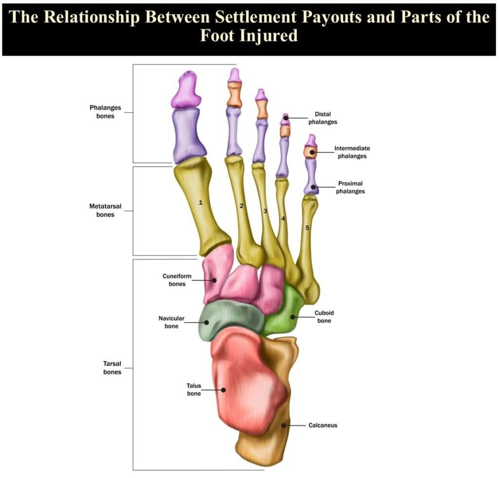 Foot Injuries and Settlement Payouts
