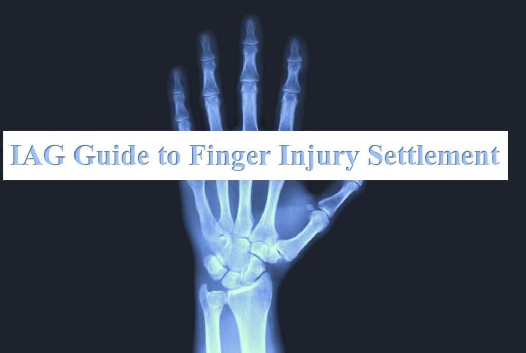 IAG Finger Injury Guide