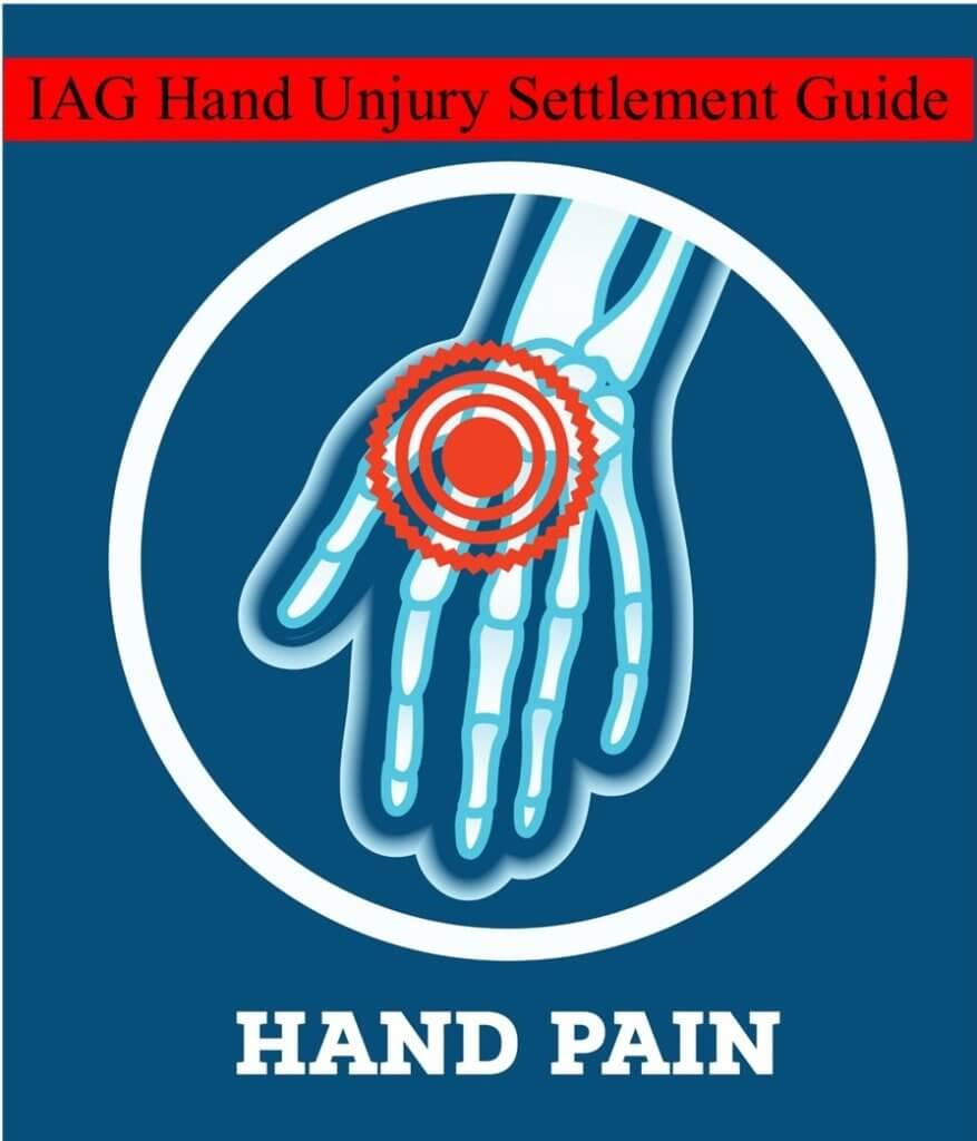 IAG Hand Injury Settlement Guide