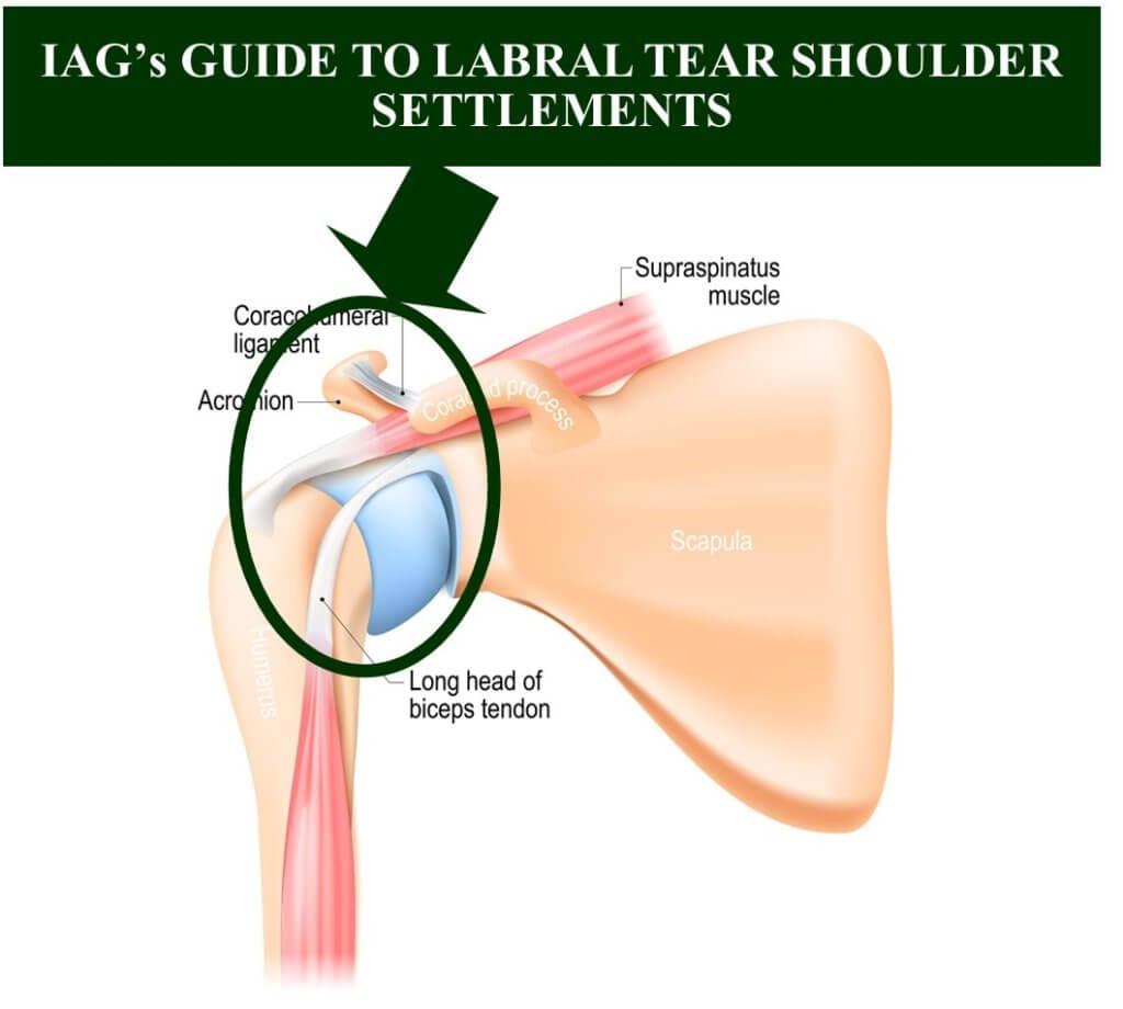 labral tear shoulder settlements