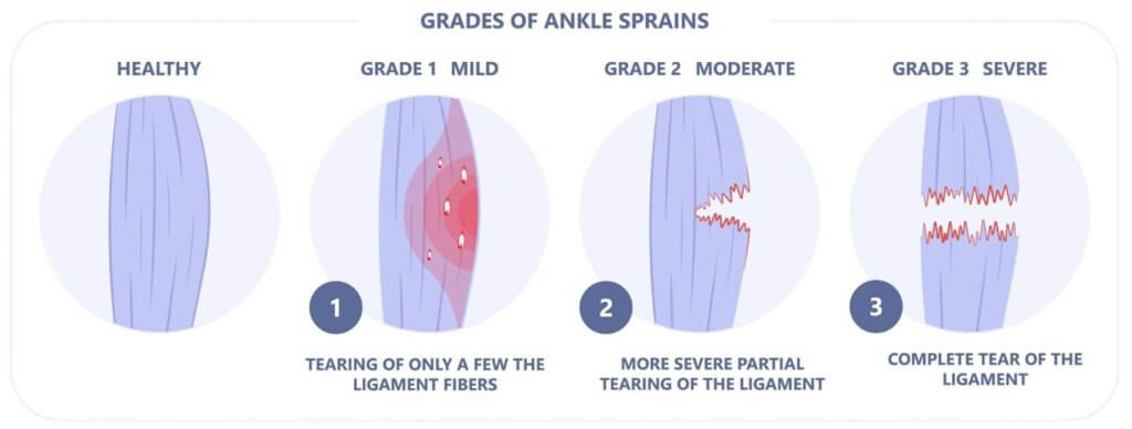 Sprained Ankles