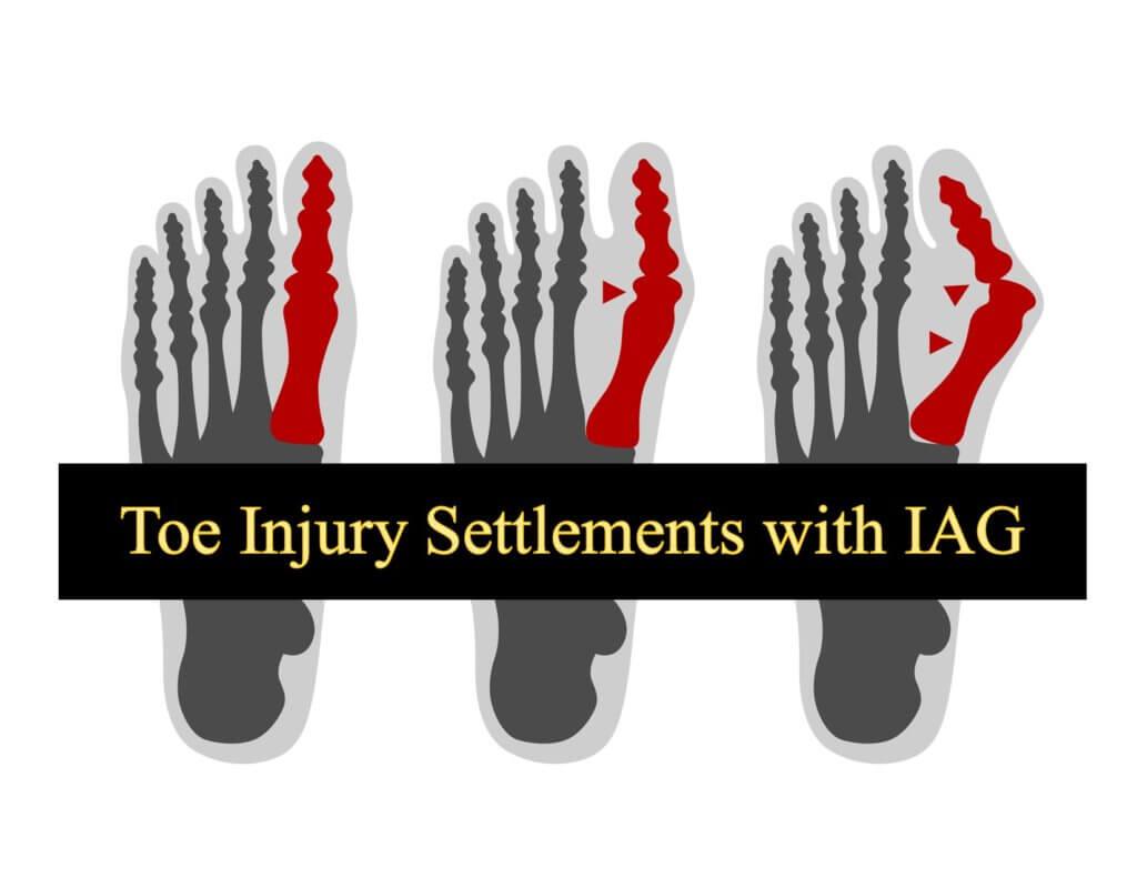 Toe Injury Settlement