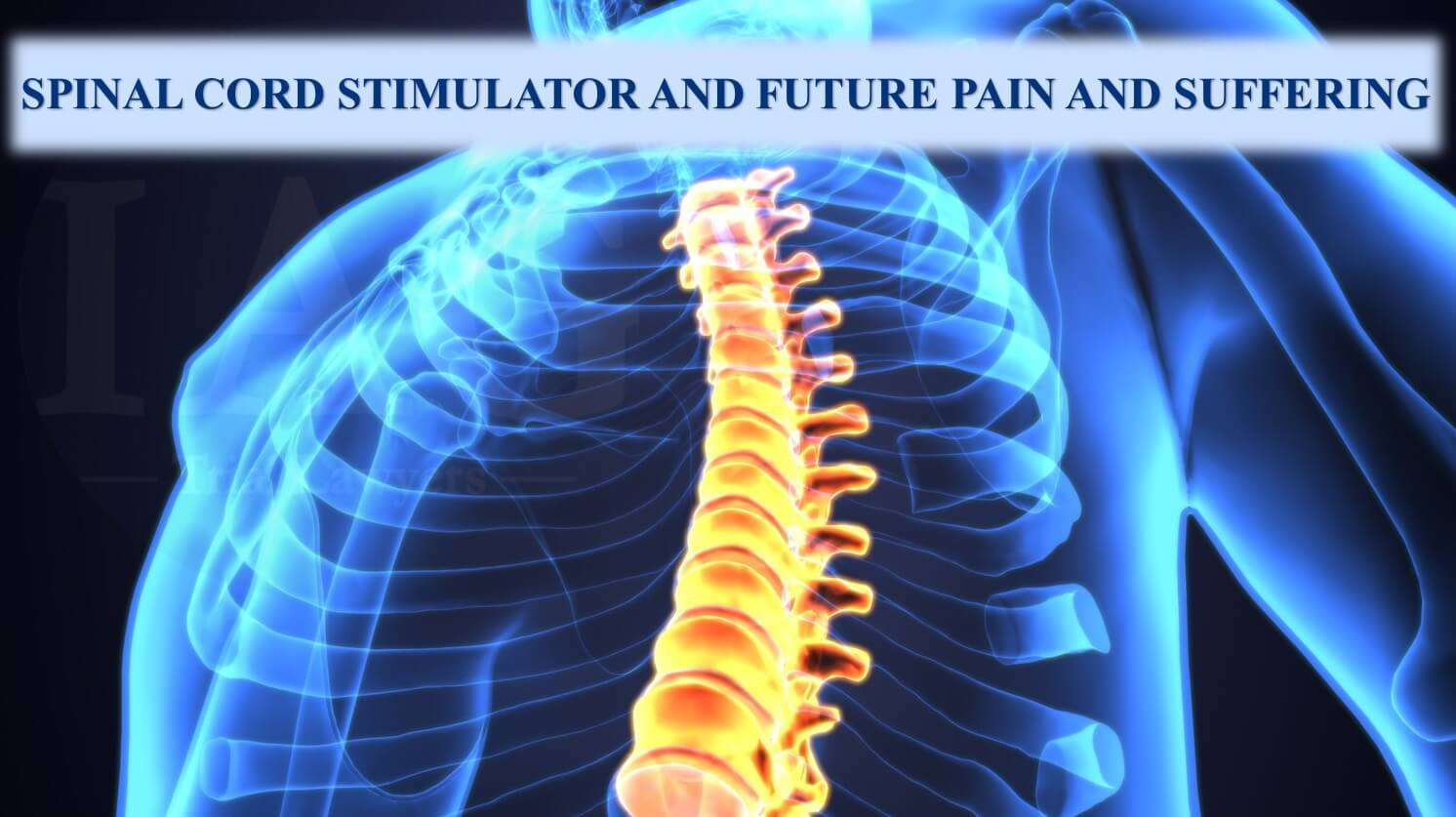 Spinal cord stimulator increases settlement because of pain and suffering