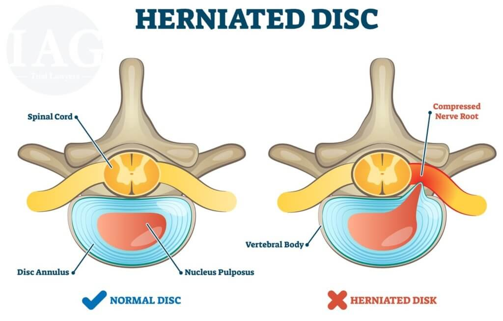 Herniated Disc Injury Diagram for Settlement Negotiations