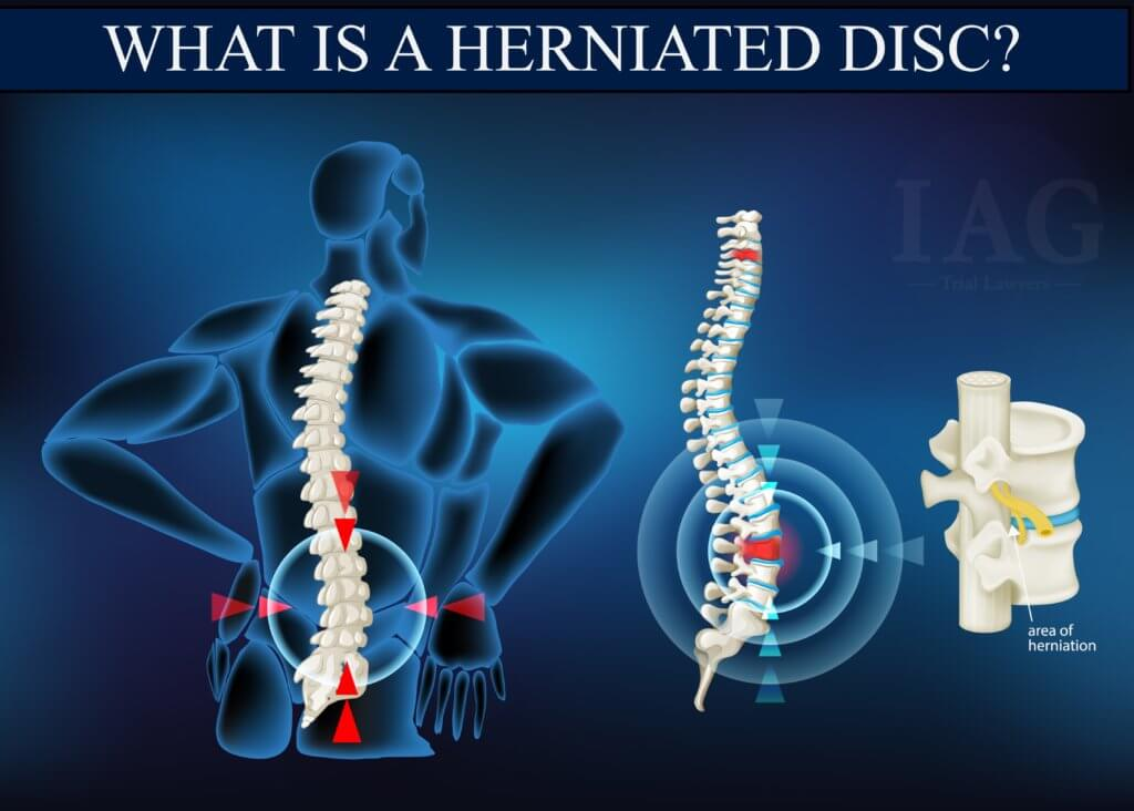 What is a herniated disc injury